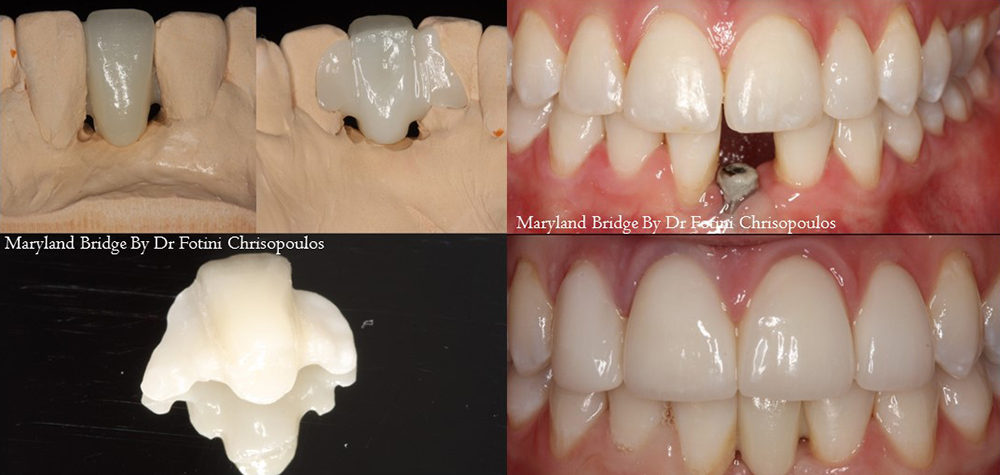 Case 1: Porcelain Maryland Bridge. Patient had a failing implant that was failing was restored with a Maryland bridge bonded to the adjacent teeth.