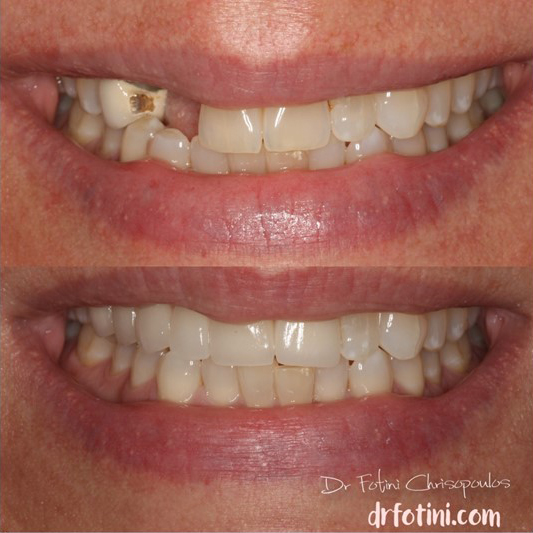 Case 11: Smile makeover with Fixed Bridges on teet