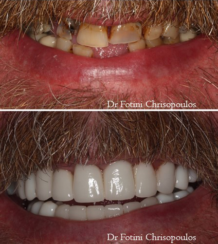 Case 15: Full Mouth Reconstruction with porcelain crowns, implants and bridges to restore worn dentition, stained and missing teet