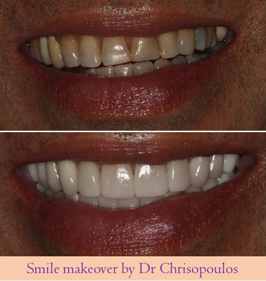 Case 16: Full mouth reconstruction by Dr Chrisopoulos with porcelain crowns and veneers to correct her patient`s bite, improve the tooth color and restore the worn dentition.