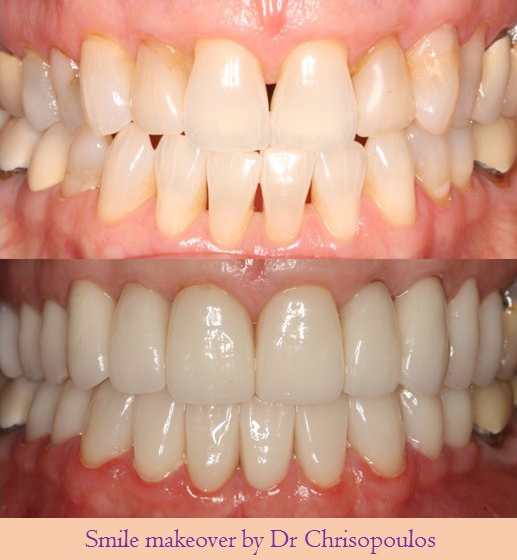 Case 18: Smile Makeover With Porcelain Veneers and Crowns. With age and periodontal disease black triangles can be created between teeth and teeth become more yellow. Here we improved the smile and teeth look whiter and youthful.