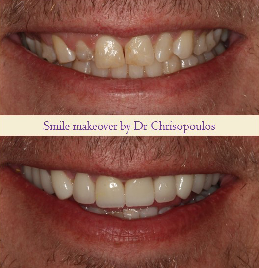 Case 19: Smile Makeover With Crown And Veneers To Improve Smile, Tooth Shape And Color. Patient Had History Of Grinding That Made His Teeth Smaller Over The Years.