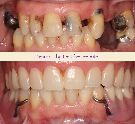 Case 2: Surgical Extractions, Upper Immediate Denture and Lower Removable Partial Denture. Missing and decayed teeth were replaced and now patient can eat, speak and smile again!