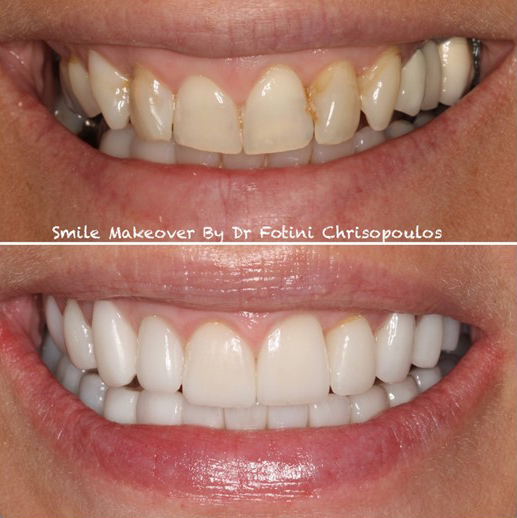 Case 21: Smile Makeover: Orthodontic treatment, implants, porcelain veneers and crowns used to refresh this smile, restore the bite and be able to smile again