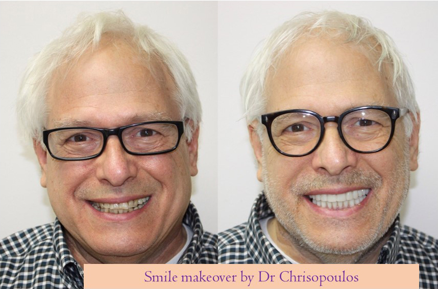 Case 4: Smile makeover with fixed implant supported bridges and ``fixed`` teeth (provisionals) in a day. Patient looks younger and can enjoy eating any food again!