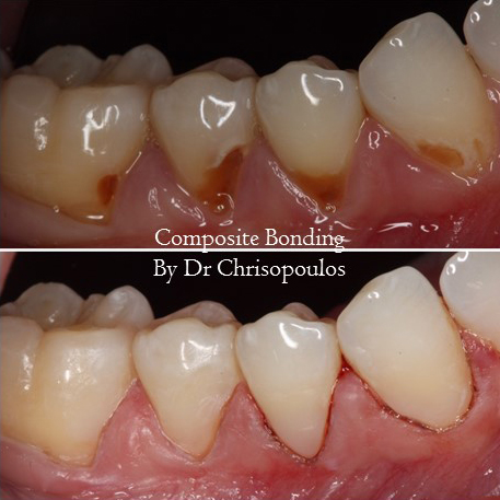 Case 6: Composite Bondings: We use the best dental material to match the bonding to the tooth shade when restoring decayed teeth.
