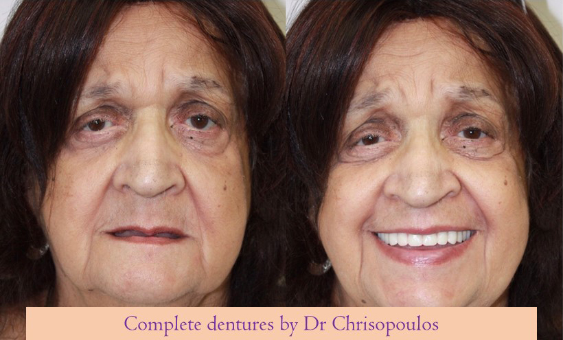 Case 7 Smile Makeover With Complete Dentures: Replacement of ill-fitting older dentures with new customized dentures. Our patient looks younger, can smile and eat well once again.
