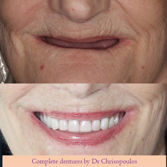 Case 8: Smile Makeover with Implant supported Dentures: Implants help to make the dentures retentive so patients can eat better.