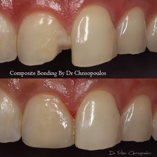 Case 9: Single Tooth Anterior Cosmetic Bonding to repair a broken tooth.